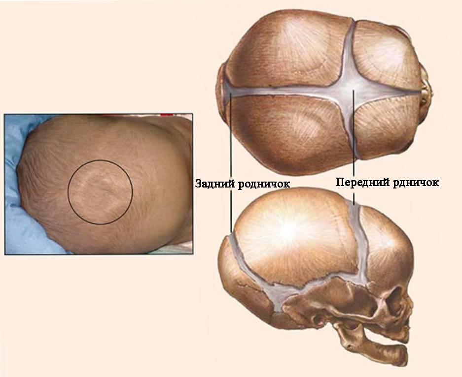 Кривошея у грудничка: признаки, симптомы, фото, лечение