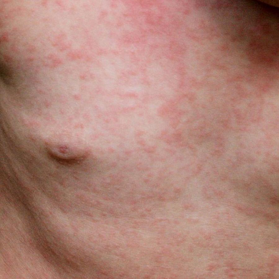 Розеола: симптомы, причины, методы лечения и профилактики