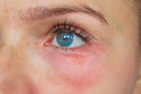 Мелкие красные точки вокруг глаз у ребенка и круги