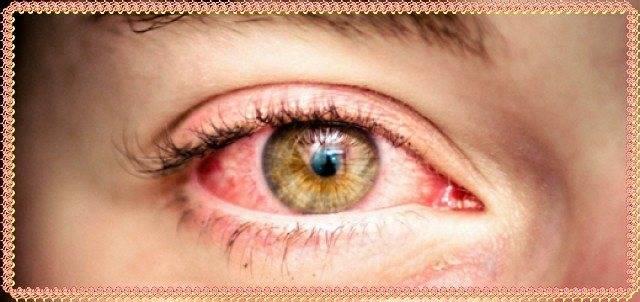 Семь самых распространенных заболеваний: красные глаза у детей — причина для беспокойства