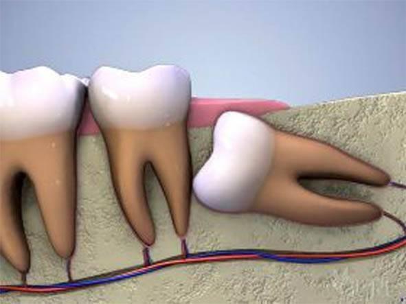 Неужели зубы так изводят ребенка?