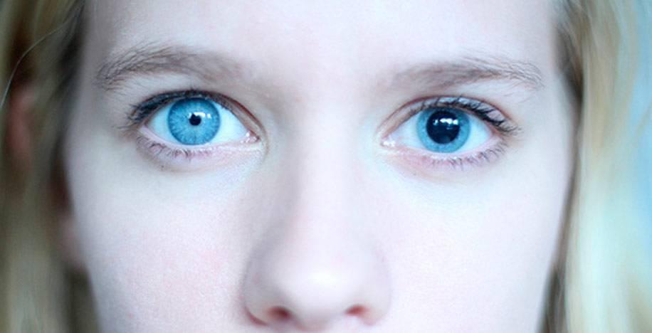 Анизокория у ребенка: что это такое, причины недуга у детей, лечение грудничка