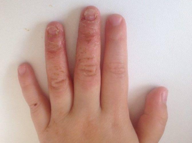 Облазит кожа у ребенка — причина появления шелушения на пальцах рук и ног как предвестник возможного заболевания