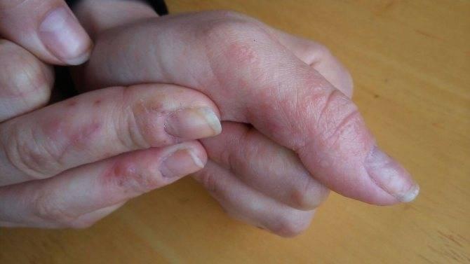 Почему у ребенка трескаются пальцы на руках