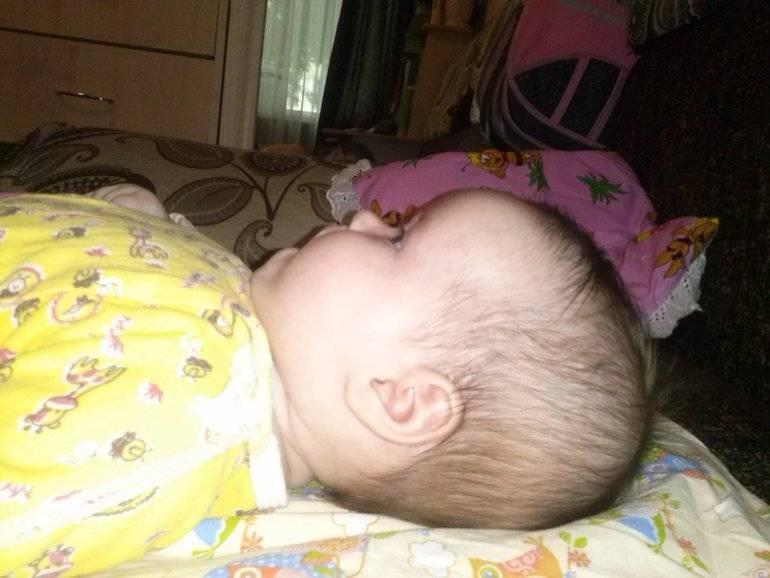 Голова новорожденного. на что обратить внимание?  . особенности головы новорожденного: памятка родителям