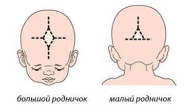 Родничок у новорожденных: родничок у новорожденных