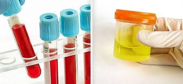 Вопрос №34 – из-за чего в моче у детей появляются слизь и бактерии?