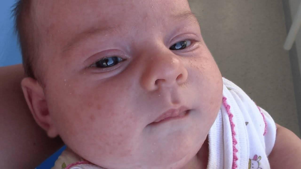 Это акне новорожденных или нет? у кого было подобное? - акне новорожденных комаровский - запись пользователя василиса (avorozoleb) в сообществе здоровье новорожденных в категории высыпания на коже - babyblog.ru