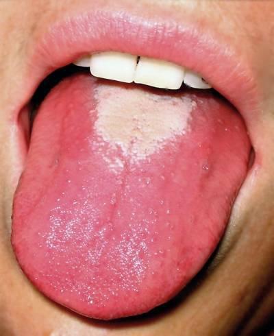 Сыпь при ангине и боль в горле: причины у ребенка и взрослого, лечение