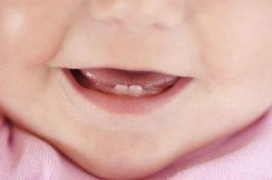 Режутся первые зубы у ребенка: терпеливо наблюдать или активно вмешиваться?
