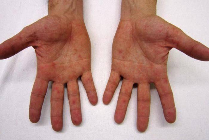 Сыпь на ногах у ребенка (31 фото): причины красной мелкой сыпи с пояснениями, без температуры на щеках у грудного ребенка