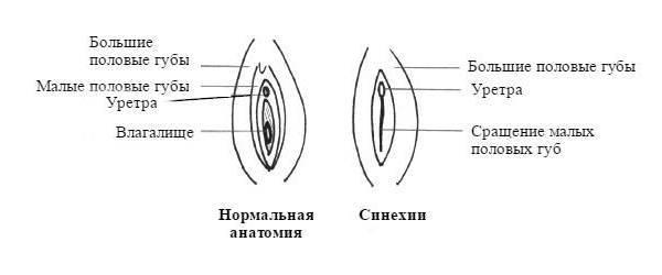 Раздражение на малых половых губах у грудничка. - покраснения половых губ у новорожденной - запись пользователя юля (iksella92) в сообществе здоровье новорожденных в категории особенности девочек - babyblog.ru