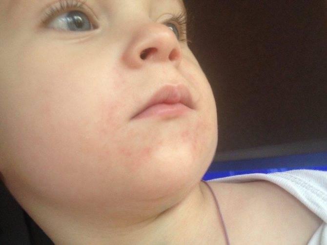Сыпь у новорожденного, грудничка и месячного ребенка: причины красных высыпаний с пояснениями, красная и мелкая сыпь теле, голове и щеках