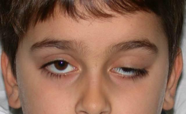 Косоглазие у детей: современные методы эффективной коррекции