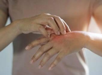 Ладошки у ребенка шелушатся. почему шелушится кожа на ладонях рук