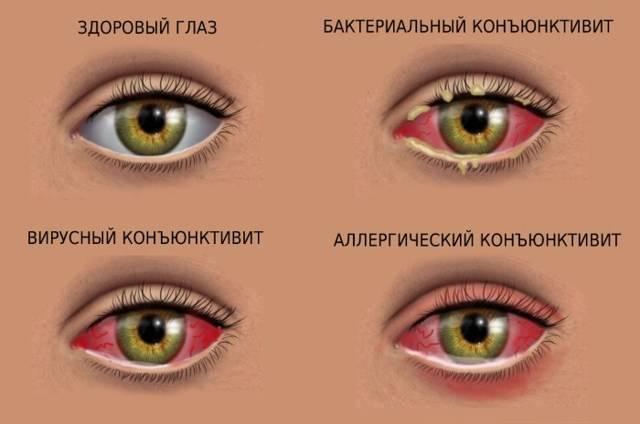 У ребенка болят глаза — возможные причины, чем можно помочь малышу