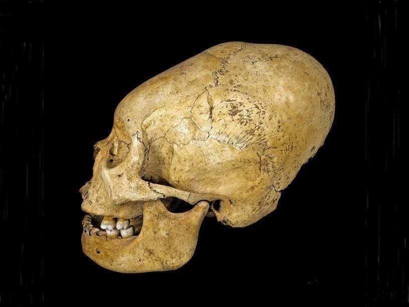 Неровный череп у грудничка!