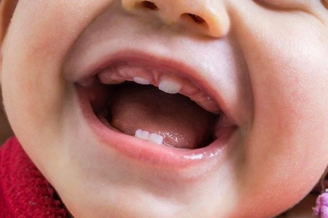 Почему у ребенка в год нет зубов — сроки появления
