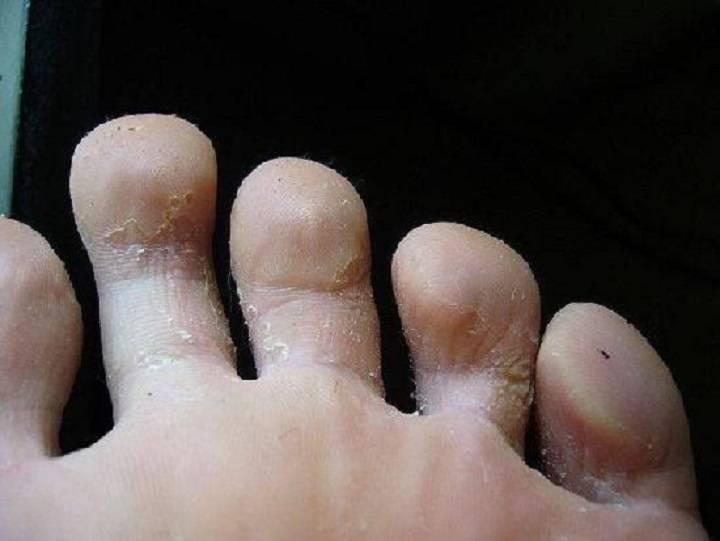 Почему облазит кожа у ребенка? облазит кожа на пальцах: что делать?