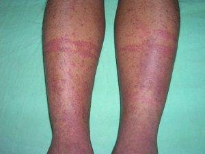 Сыпь на ногах у ребенка