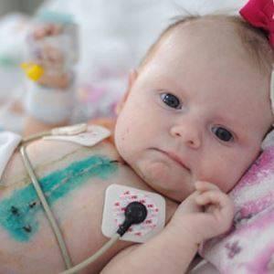 Врожденный порок сердца у новорожденных