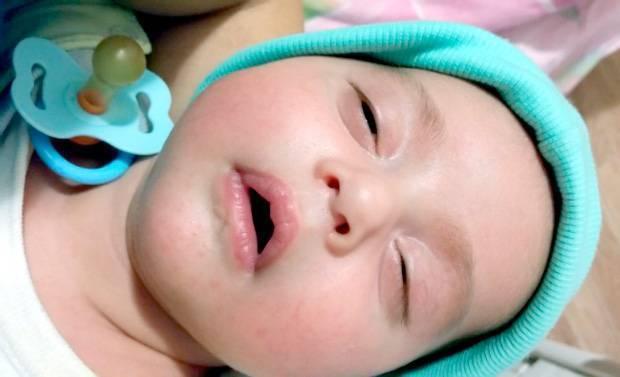 Почему ребенок начал закатывать глаза