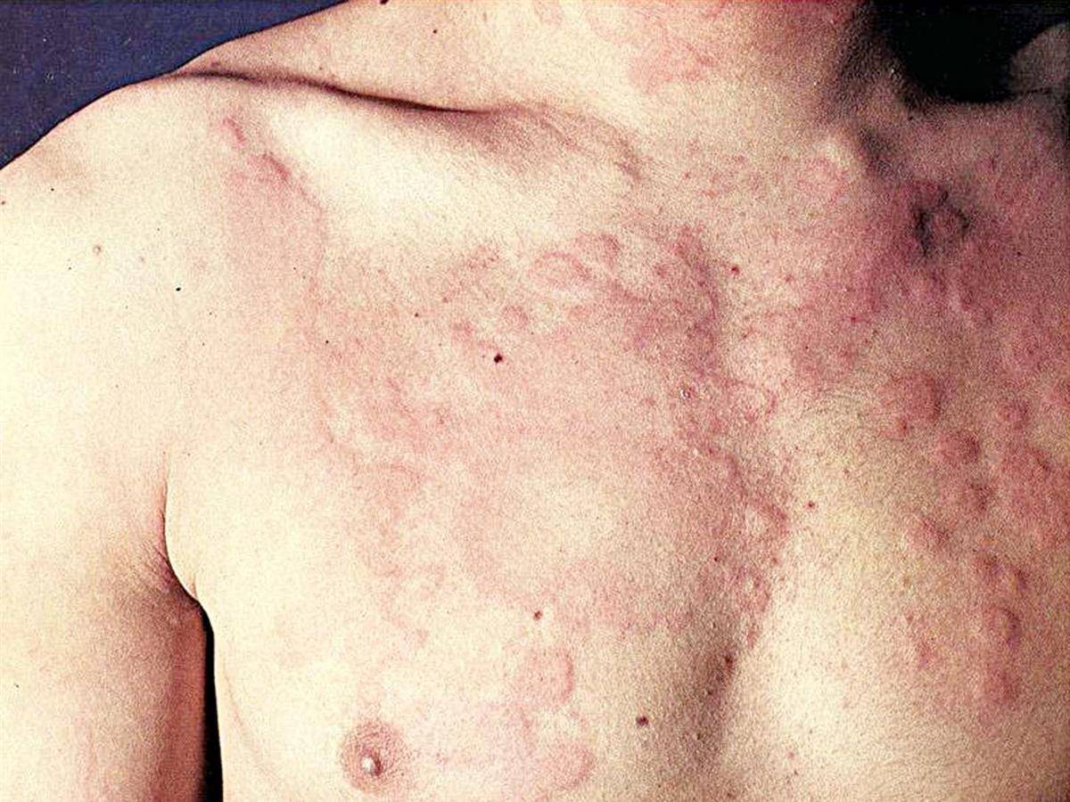 Красные пятна на теле человека: причины каких заболеваний