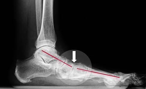 У ребенка болят ноги ниже колен после температуры