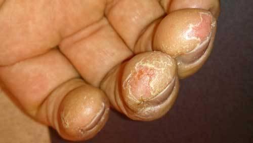 Почему у ребенка слезает кожа на пальцах рук?