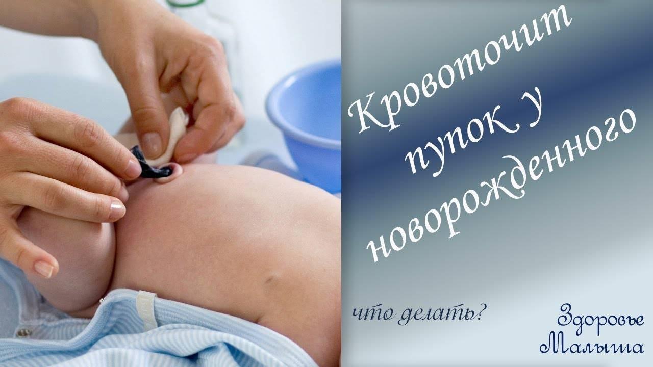 Как проводится уход за пупочной ранкой новорожденного