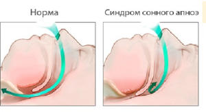 Остановка дыхания во сне у новорожденного: лечение и возможные последствия