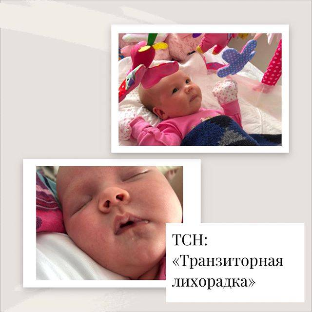 Пограничные состояния у новорожденных   беременность