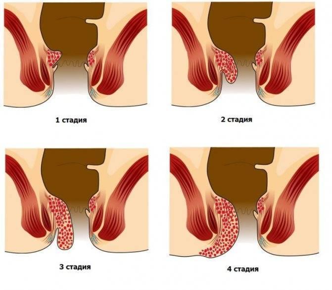 Как предотвратить раздражение у новорожденного на ягодицах