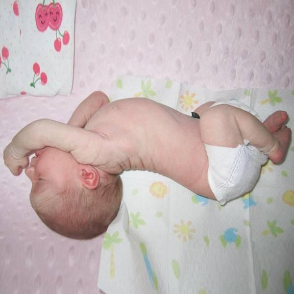 Подскажите, что это? - синеет над губой у новорожденного - запись пользователя татьяна (myrki) в сообществе здоровье новорожденных в категории разное - babyblog.ru