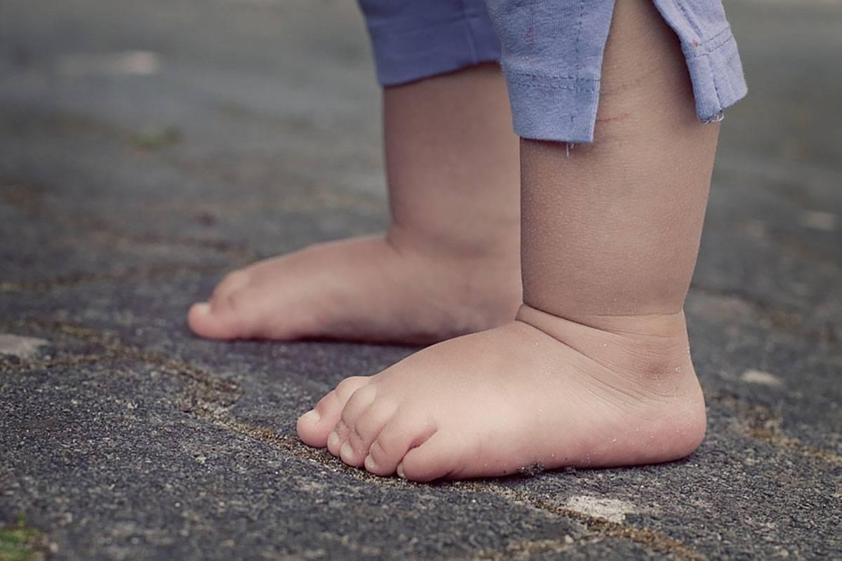 Ребёнок начал ходить на носочках