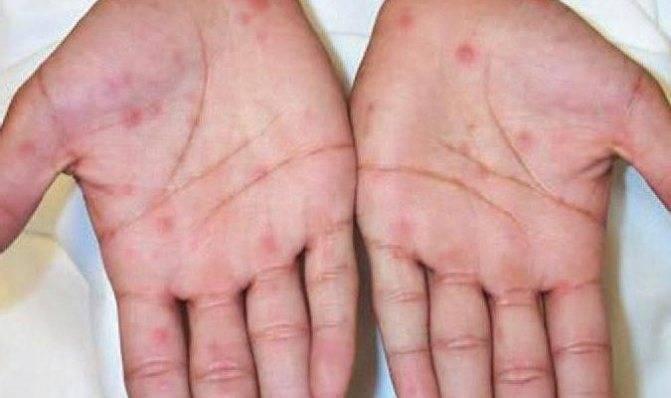 Сыпь на ладонях и ступнях ребенка - причины с фото и лечение