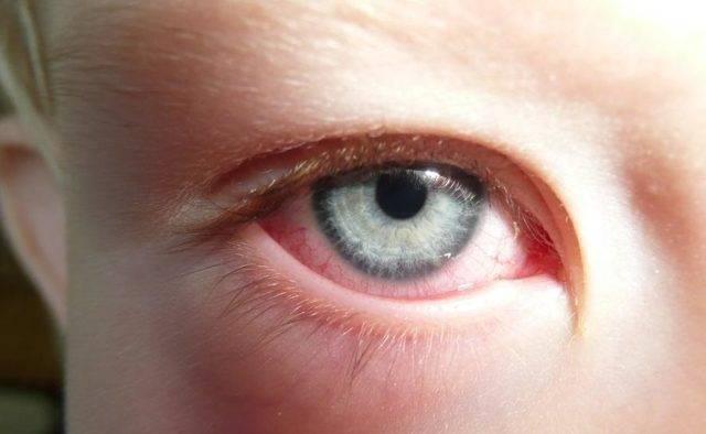 Почему появляется кровоизлияние в глазу у новорожденного?