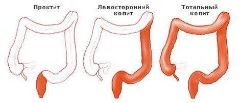 Воспаление кишечника у грудничка симптомы