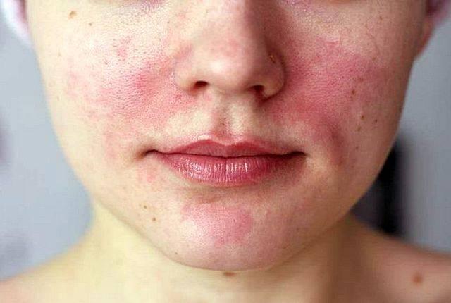 Аллергия на памперсы: подгузники и аллергия   аллергия на подгузники   метки: памперс, симптом, лечение