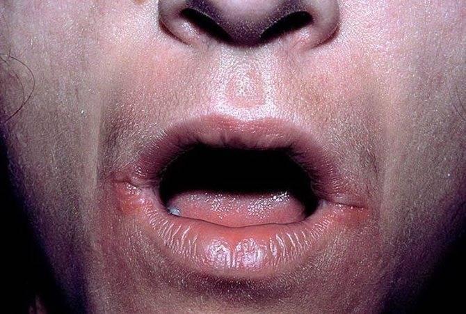 Почему у ребенка появляются заеды в уголках рта и как вылечить недуг?