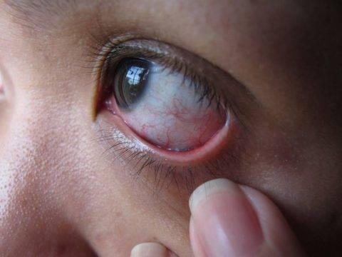 Как вытащить ресницу из глаза: 8 способов