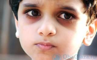 Причины образования мешков под глазами у годовалого ребенка и способы лечения красных глаз