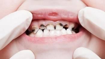 Как проходит прорезывание зубов у детей