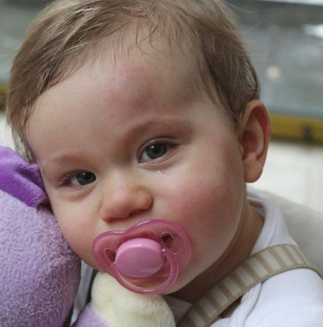 Гематома на голове у новорожденногоребенка после родов