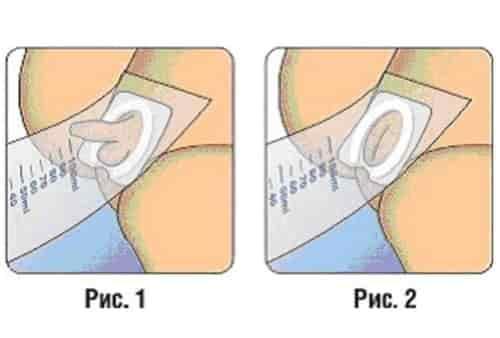 Общий анализ мочи у грудничков и детей раннего возраста: подготовка, правила сбора, расшифровка результатов