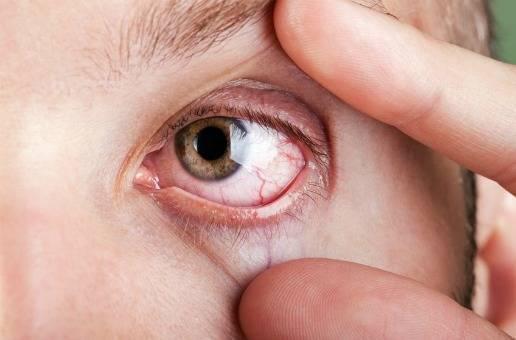 Насколько серьезен лопнувший сосуд в глазу у ребенка