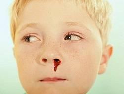 Что делать, если ребенок засунул в нос мелкий предмет - первая помощь