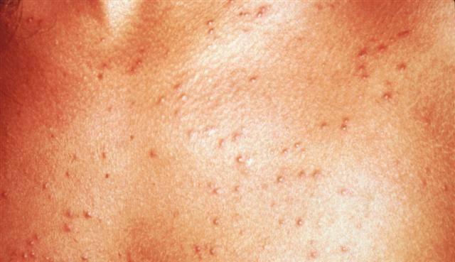 Сыпь после температуры с фото: как отличить аллергию от вируса