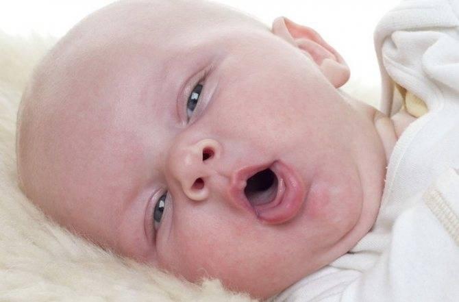 Кашель у грудничка без температуры, насморк — что делать родителям