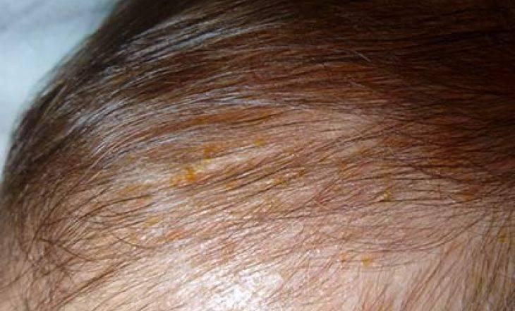 Корочки на голове у грудничка